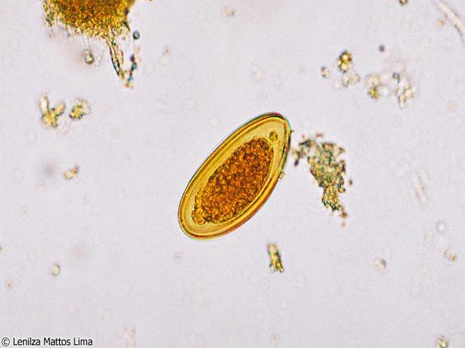 Enterobius vermicularis yumurtasi goruldu