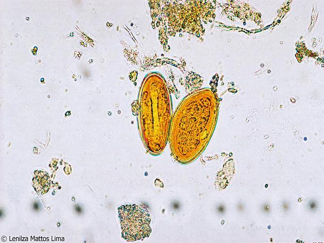 enterobius vermicularis yumurtasi goruldu hpv virus linked to cancer